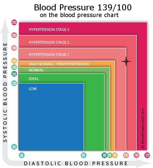 Blood Pressure 139 over 100 on the blood pressure chart