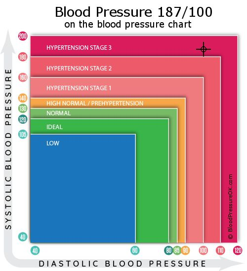 Blood Pressure 187 over 100 on the blood pressure chart